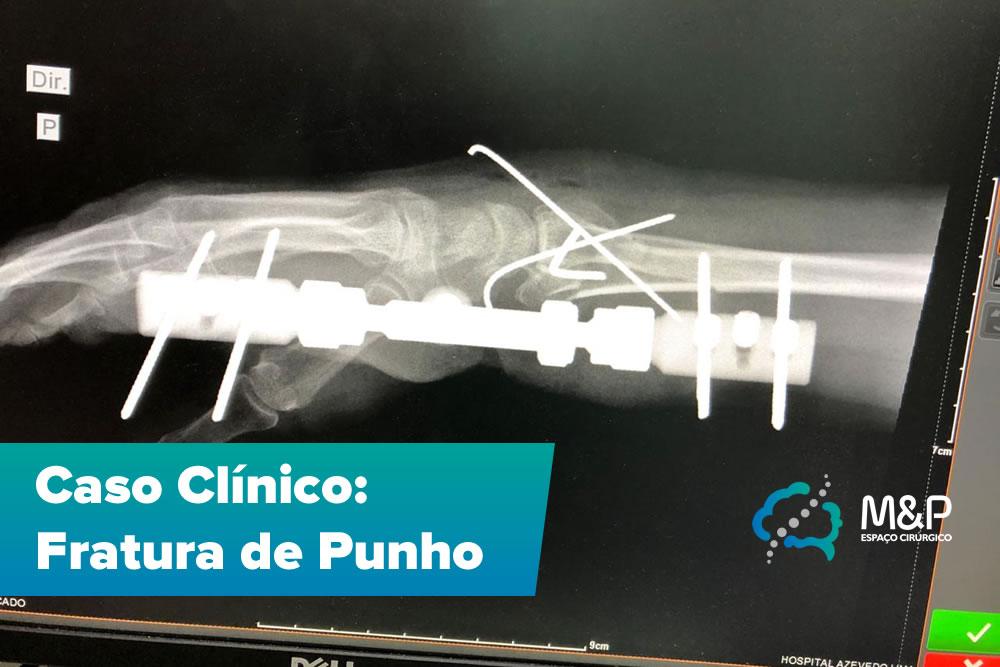 Caso Clínico Ortopedia – Fratura de Punho