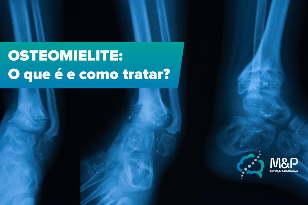 Osteomielite – O que é e como tratar?