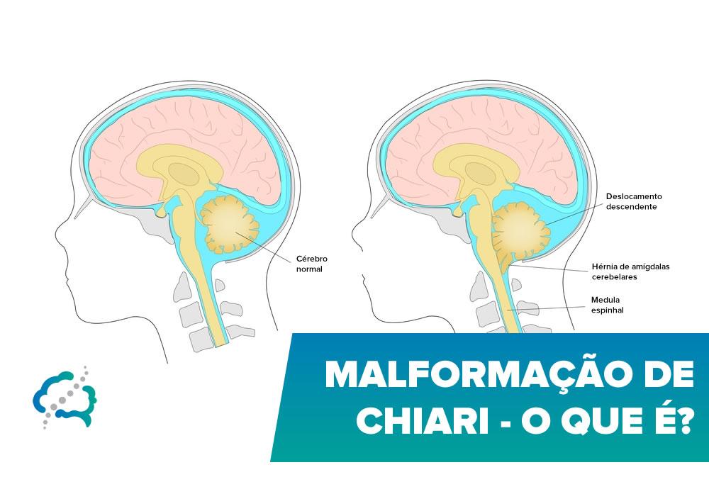 Malformação de Chiari – O que é?